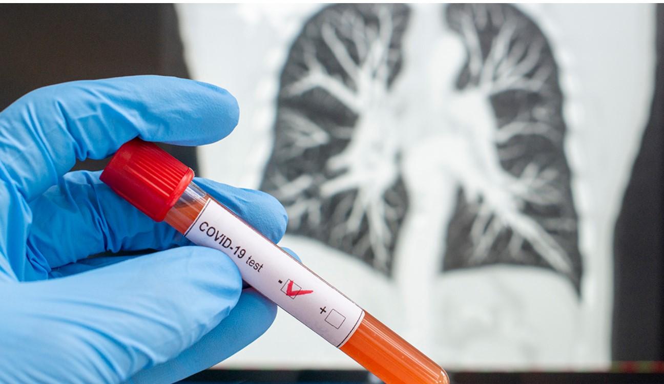 Engineering Services Bodies Launch Coronavirus Impact Survey